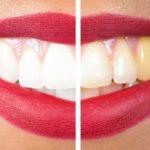 Clareamento Dental Caseiro Com Moldeira Beauty Blog
