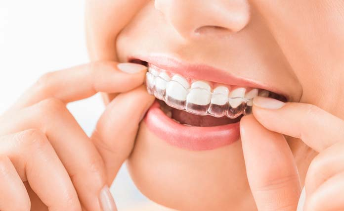 It is very important to keep your dental health in a ...