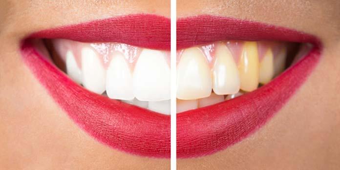 Clareamento Dental Como Funciona Enfraquece Os Dentes Caseiro