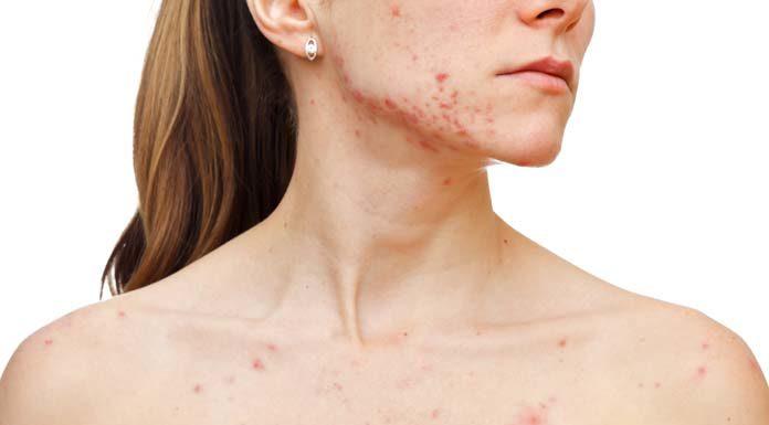 tratamentos caseiros para manchas de acne