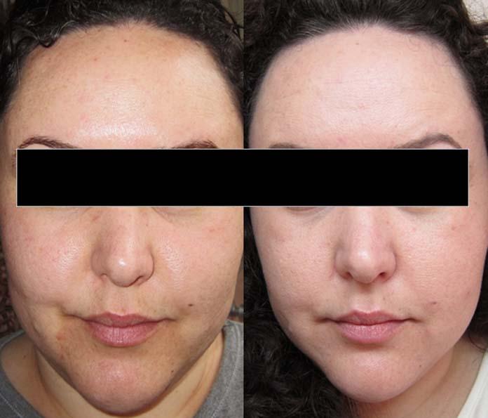 Antes e depois do peeling químico
