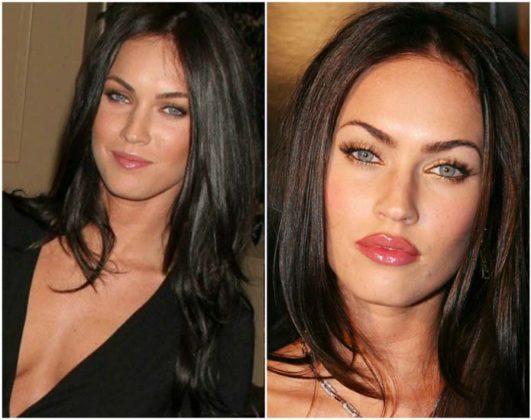 Antes e depois do preenchimento labial