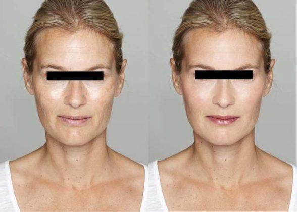 Antes e depoisLifting facial
