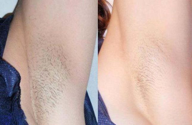 depilação a laser antes e depois