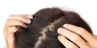 Cuidados com o couro cabeludo