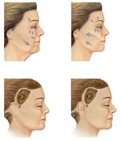 Lifting Facial como é feito