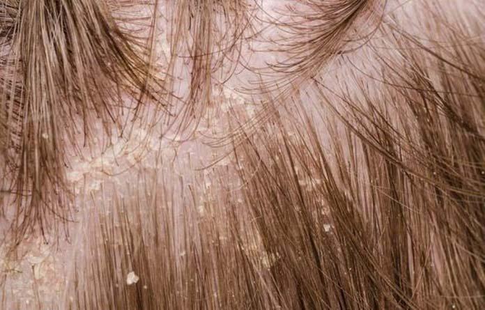 couro cabeludo descamando
