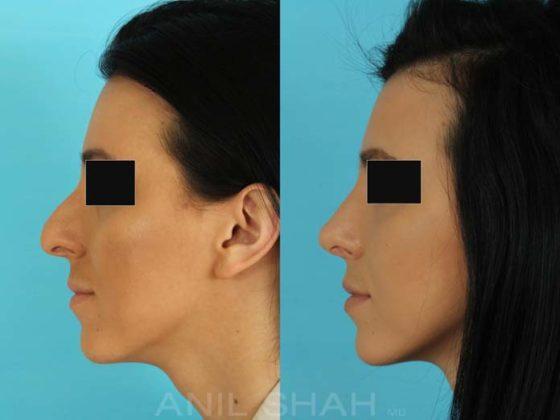 Antes e depois de fazer rinoplastia