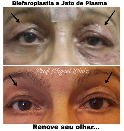 Jato de plasma antes e depois