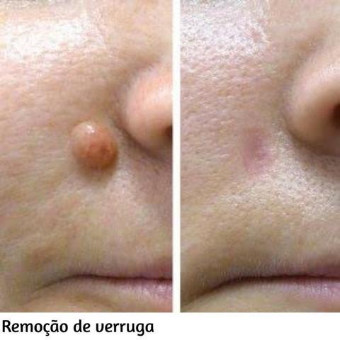 carboxiterapia cicatriz antes e depois