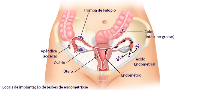orgaos afetados pela Endometriose