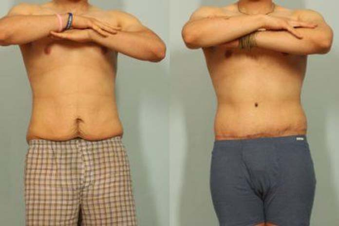 Abdominoplastia-masculina-03 - Beauty Blog