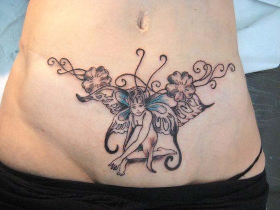 abdominoplastia tatuagem