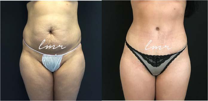 Antes e depois da Abdominoplastia
