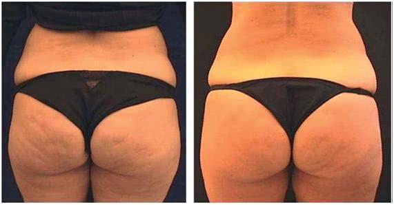 carboxiterapia antes e depois
