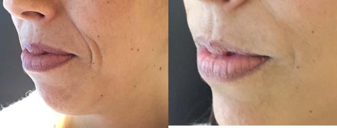 preenchimento no bigode chines