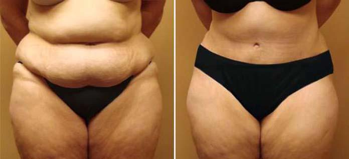 dermolipectomia antes e depois