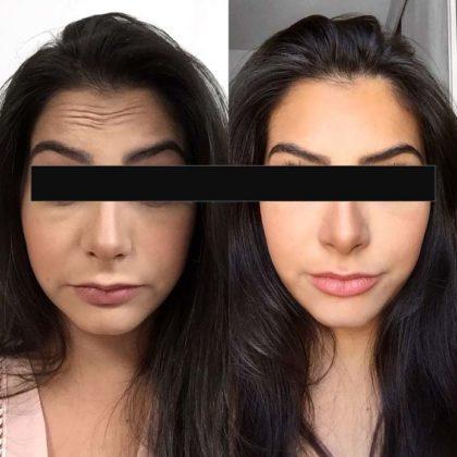 Preenchimento facial antes e depois