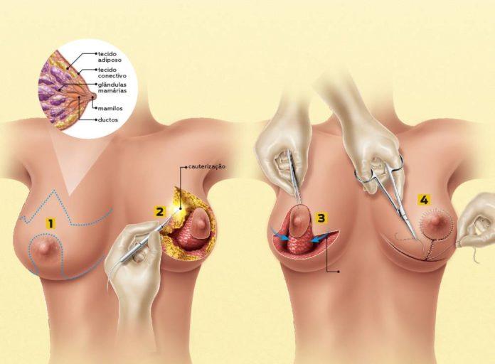 Como é feita a redução de mama