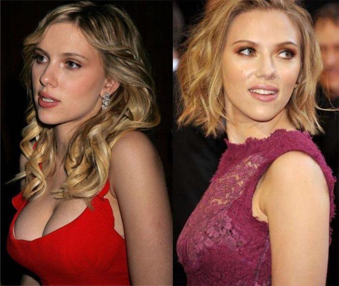 Scarlett Johansson antes e depois da redução de mama