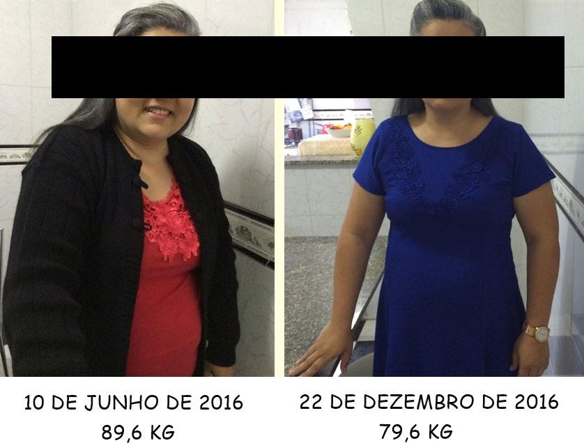 antes e depois da sibutramina