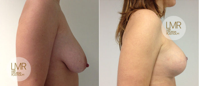 Mastopexia Fotos de antes e depois