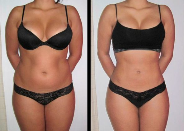 Lipoescultura antes e depois