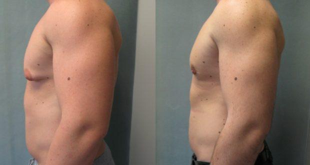 antes e depois da mamoplastia