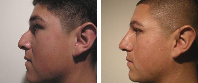 Fotos de antes e depois da bioplastia
