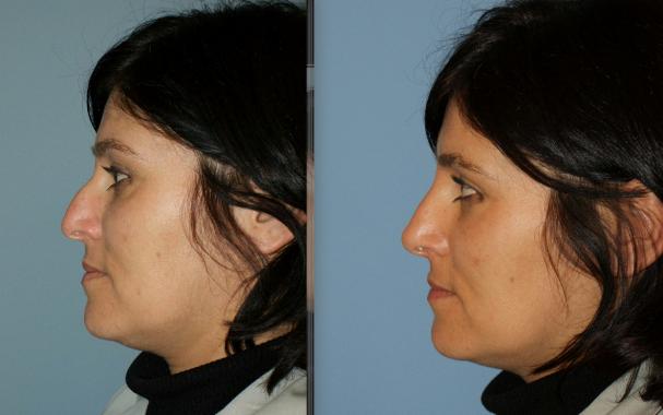 Fotos de antes e depois da rinomodelação