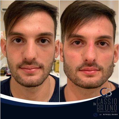 harmonização facial masculina antes e depois