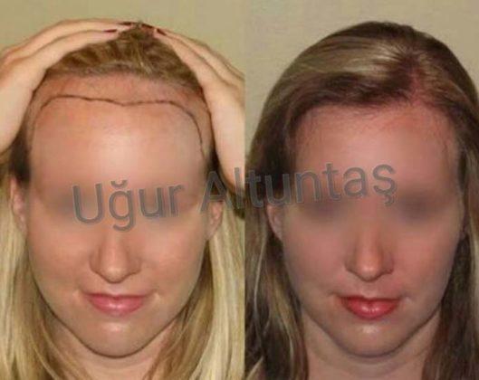 transplante capilar feminino antes e depois