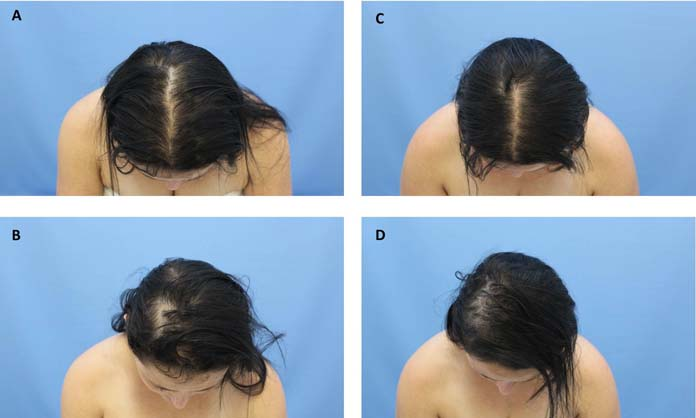 Fototerapia capilar antes e depois